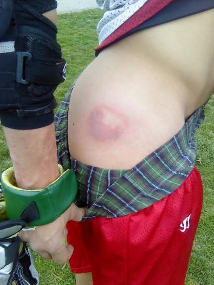 Lacrosse bruise